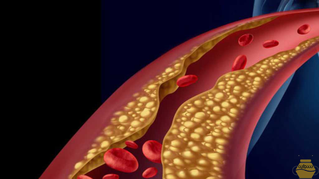 Royal jelly and lower cholesterol